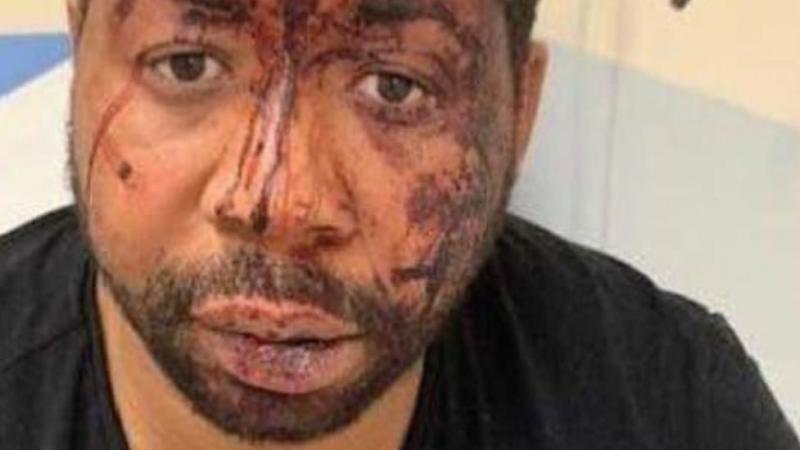 La police n'est que le reflet d'une société gangrenée par le racisme
