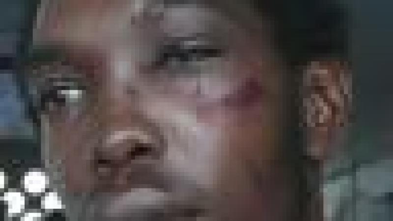 BAVURE POLICIÈRE EN GUADELOUPE